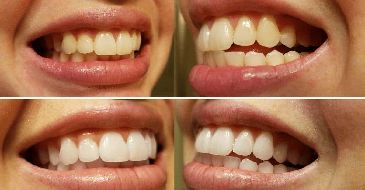 At Home Teeth Whitening Kit Results Smile Brilliant Review